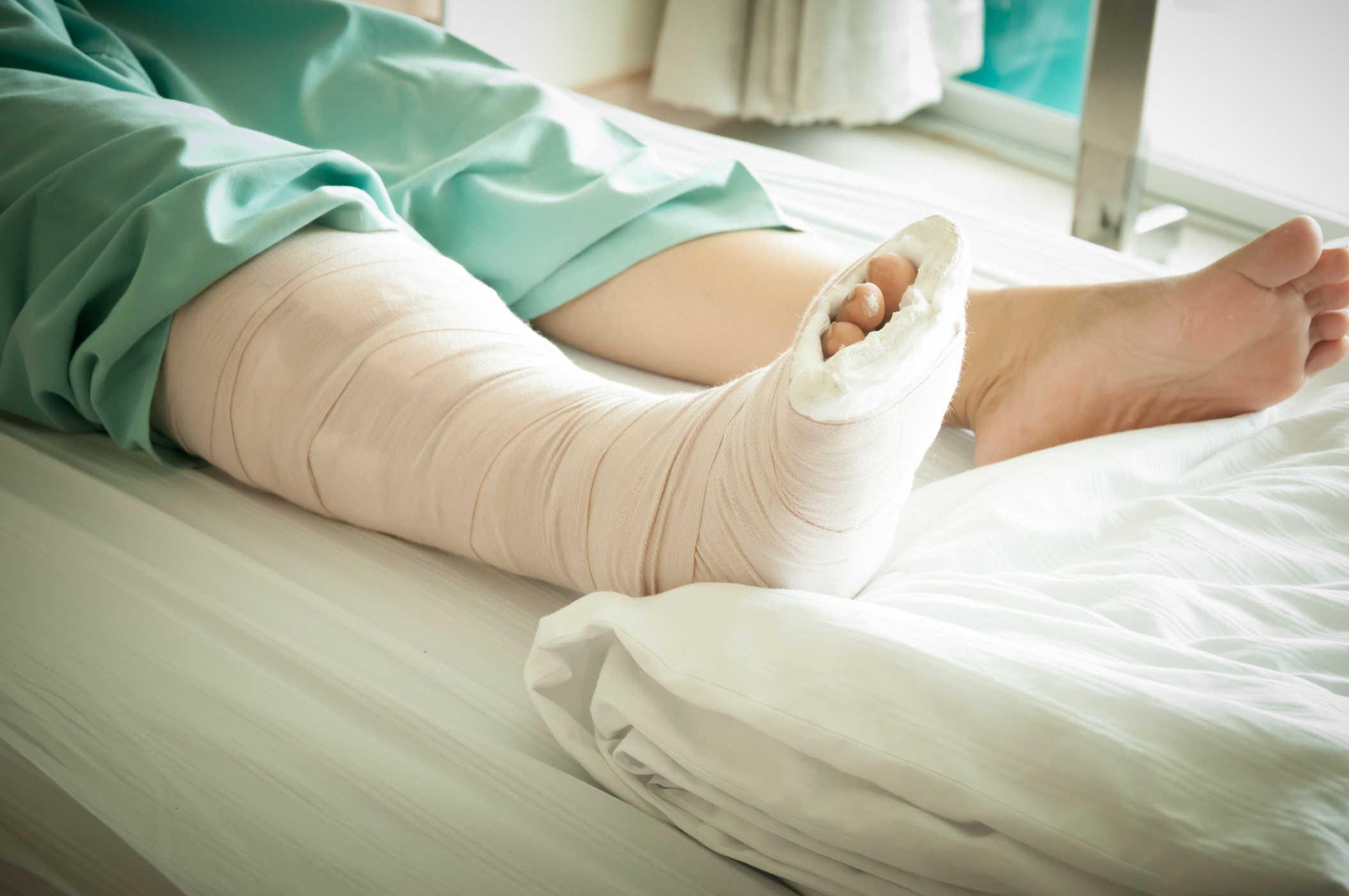 Phẫu thuật tháo vít xương bao lâu đi được?
