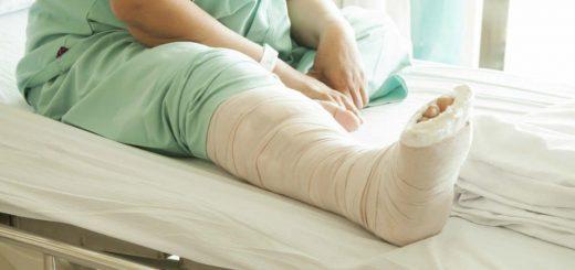 Gãy xương đùi bao lâu thì hồi phục?
