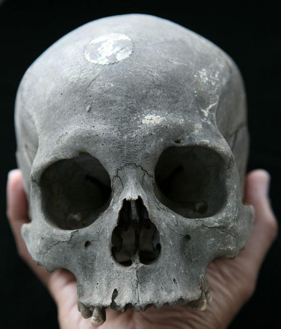 Tại sao xương người chết lại đen?