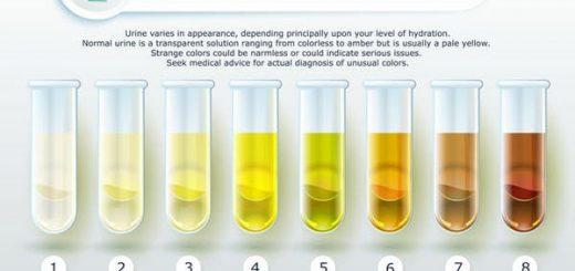 Tại sao nước tiểu có màu vàng?