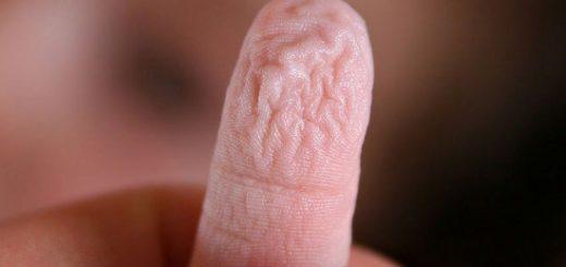 Tại sao ngón tay nhăn lại khi ngâm nước?