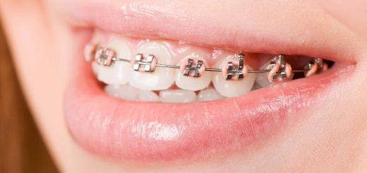 Niềng răng bao lâu thì tháo được?
