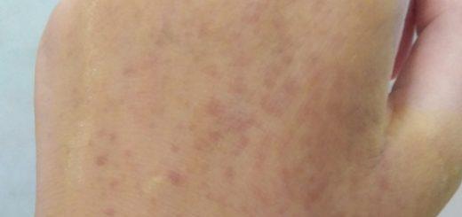 Xuất hiện những đốm đỏ trên da có nguy hiểm?