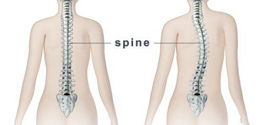 Bị vẹo cột sống ngực hình chữ S phải làm sao?