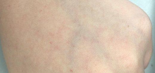Bị nổi nốt đỏ trên da tay có nguy hiểm?