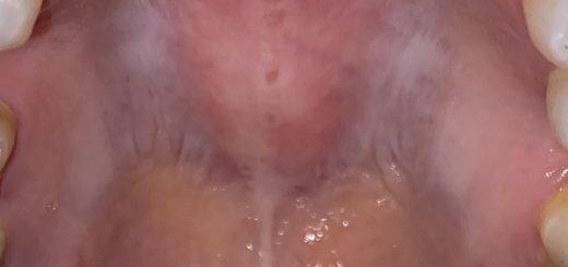Chai bề mặt vòm miệng, viêm họng là bệnh gì?