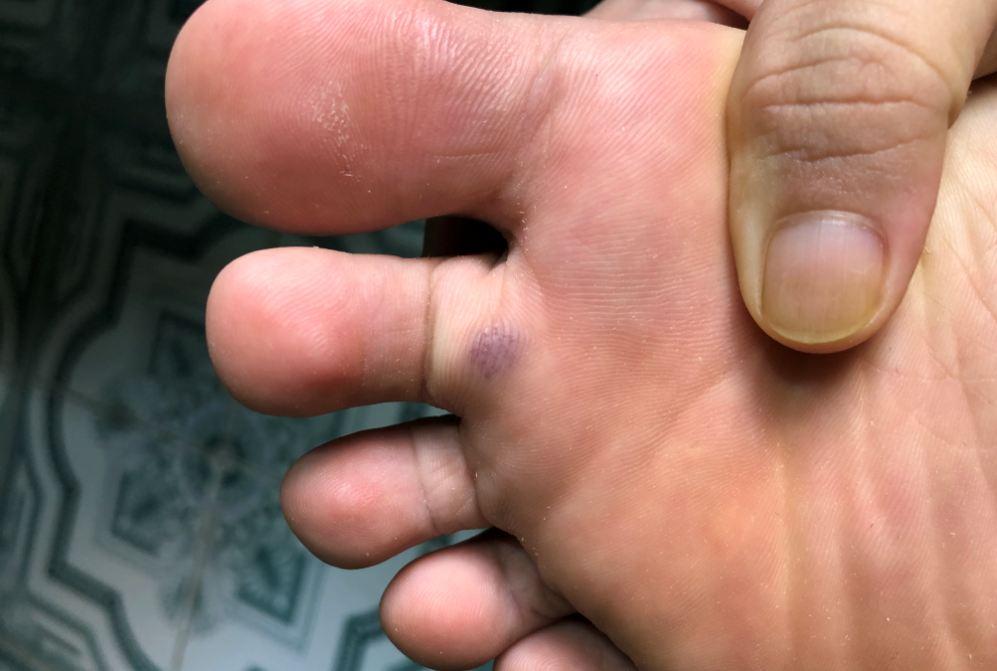 Máu bầm dưới bàn chân làm sao để hết?